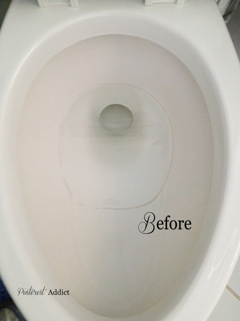 How Do I Clean A Toilet Bowl Ring